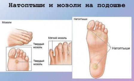 натоптыши на ступнях лечение
